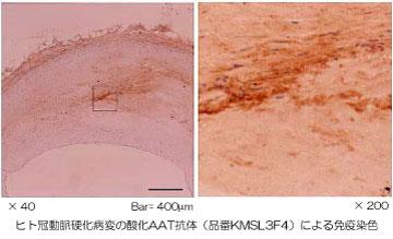 ox-AAT抗体による免疫染色