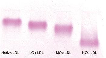 各種酸化リポタンパク質のゲル移動度(REM)