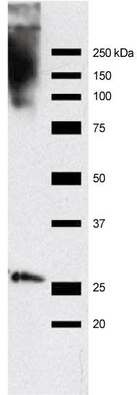 Hep2細胞抽出物をRrp4抗体を用いてイムノブロットを行い、1×希釈ハイブリドーマ培養上清と反応させた