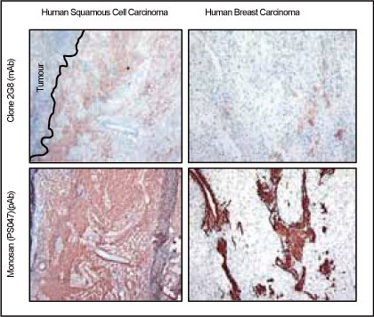 4μmのヒト扁平上皮細胞癌、ヒト乳癌の凍結切片を1:1000で希釈したコラゲナーゼ抗体で染色した