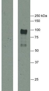 免疫ブロット結果|シトルリン化フィブリノーゲン抗体