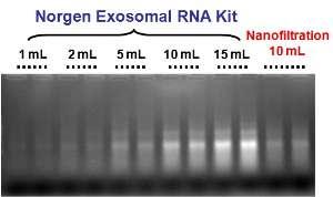 各用量の尿からのエキソソームRNA抽出