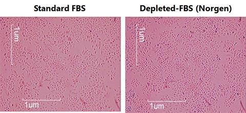 クソソーム除去FBSを使用したHeLa 細胞増殖率