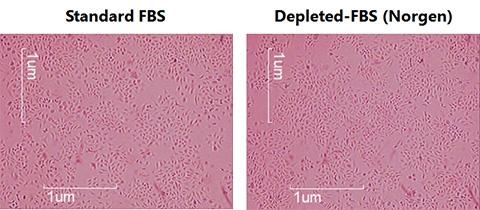 エクソソーム除去FBSを使用したHeLa 細胞増殖率