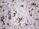 パラフィン包埋したヒト成体脳組織をanti-GFAP マウスモノクローナル抗体を使って免疫組織化学染色 Clone UMAB5