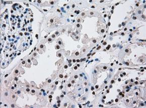 パラフィン包埋したヒト腎臓組織をanti-ERCC1 マウスモノクローナル抗 体を使って免疫組織化学染色 Clone 4F9, 希釈率 1:50