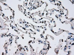 パラフィン包埋したヒト肺組織の細胞腫をanti-ERCC1 マウスモノクロー ナル抗体を使って免疫組織化学染色 左:Clone 4F9希釈率 1:50
