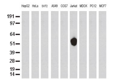 9種の細胞株の可溶化液をanti-CD5 モノクローナル抗体でWB解析