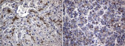パラフィン包埋したヒト肝臓組織( 左)およびヒト肝臓組織の細胞腫( 右) をanti-SQSTM1 マウスモノクローナル抗体を使って免疫組織化学染色 Clone UMAB12, 希釈率 1:100