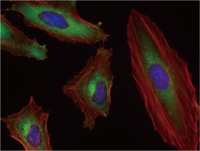 HeLa 細胞をSQSTM1 マウスモノクローナル抗体を用いて免疫蛍光染色(UM500013、緑色)。アクチン線維はTRITC- ファロイジン(赤色)ラベルし、核はDAPI 染色(青色)し、3色を重ね合わせた。  :Clone UMAB12