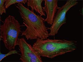 HeLa 細胞をSQSTM1 マウスモノクローナル抗体を用いて免疫蛍光染色(UM500013、緑色)。アクチン線維はTRITC- ファロイジン(赤色)ラベルし、核はDAPI 染色(青色)し、3色を重ね合わせた。 :Clone UMAB13