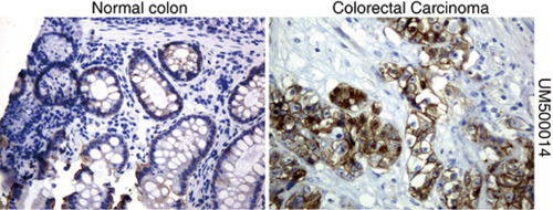 パラフィン包埋したヒト結腸組織および結腸直腸がん組織をanti- β -catenin マウスモノクローナル抗体を使って免疫組織化学染色 :Clone UMAB14( 希釈率 1:100)