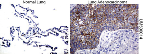 パラフィン包埋したヒト正常肺組織および肺腺がん組織をanti- β -catenin マウスモノクローナル抗体を使って免疫組織化学染色 :Clone UMAB14( 希釈率 1:100)