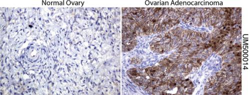 パラフィン包埋したヒト正常卵巣組織および卵巣腺がん組織をanti- β -catenin マウスモノクローナル抗体を使って免疫組織化学染色 :Clone UMAB14( 希釈率 1:100)