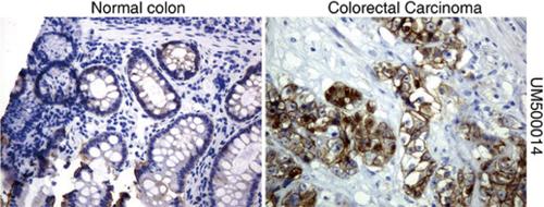 パラフィン包埋したヒト結腸組織および結腸直腸がん組織をanti- β -catenin マウスモノクローナル抗体を使って免疫組織化学染色 :Clone UMAB15( 希釈率 1:100)