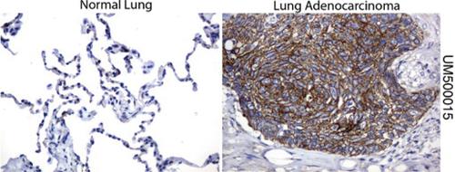 パラフィン包埋したヒト正常肺組織および肺腺がん組織をanti- β -catenin マウスモノクローナル抗体を使って免疫組織化学染色 :Clone UMAB15( 希釈率 1:100)