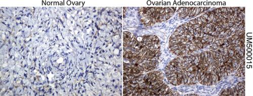 パラフィン包埋したヒト正常卵巣組織および卵巣腺がん組織をanti- β -catenin マウスモノクローナル抗体を使って免疫組織化学染色:Clone UMAB15( 希釈率 1:100)
