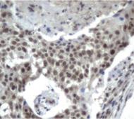 パラフィン包埋したヒト肺組織の細胞腫をanti-XPF(UMAB22) マウスモノクローナル抗体を使って免疫組織化学染色  :Clone UMAB21 希釈率1:50