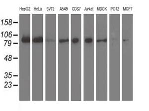 9種の細胞株からの抽出物(35ug)をanti-XRCC1 モノクローナル抗体を使ってウェスタンブロット解析(Clone UMAB21)