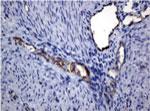 パラフィン包埋したヒト子宮内膜組織をanti-PECAM1 マウスモノクローナル抗体を使って免疫組織化学染色 Clone UMAB30( 希釈率 1:100)
