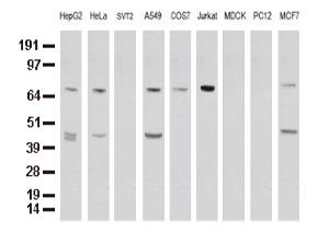 9種の細胞株からの抽出物(35ug)をanti-XRCC1 モノクローナル抗体を使ってウェスタンブロット解析(Clone UMAB40, 希釈率 1:500)