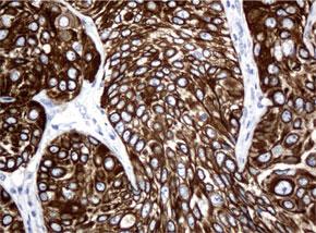 パラフィン包埋したヒト膀胱組織の細胞腫をanti-KRT18 マウスモノク ローナル抗体を使って免疫組織化学染色(UM500045)