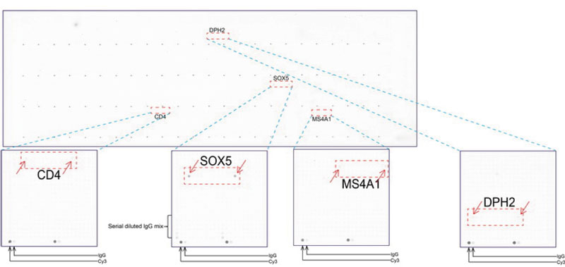 ORG 社のoverexpression protein microarray chip をUltraMAB anti-SOX5 マウスモノクローナル抗体を用い て免疫染色(UM500047)。陽性反応を示すタンパク質は拡大したサブアレイ内に赤色矢印を用いてハイライトした。 サブアレイ内に存在する全てのポジティブコントロールも明確にするためラベルした。