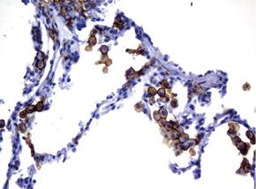 パラフィン包埋したヒト肺組織をanti-FCGR2A マウスモノクローナル抗 体を使って免疫組織化学染色  Clone UMAB59