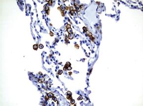 パラフィン包埋したヒト肺組織をanti-FCGR2A マウスモノクローナル抗 体を使って免疫組織化学染色 Clone UMAB60