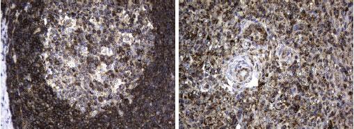 anti-BTLA マウスモノクローナル抗体を使って免疫組織化学染色