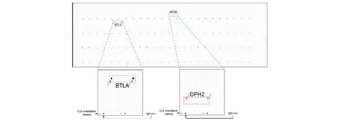 UltraMAB anti-BTLA マウスモノクローナル抗体を用いて免疫染色