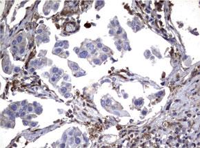 パラフィン包埋したヒト膀胱組織の細胞腫をanti-SDCBP マウスモノク ローナル抗体を使って免疫組織化学染色(UM500057)