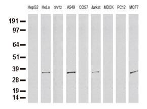 9種の細胞株からの抽出物(35ug)をanti-SDCBP モノクローナル抗体 を使ってウェスタンブロット解析(Clone UMAB69)