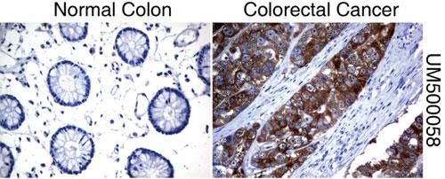 パラフィン包埋したヒト正常結腸組織と結腸がん組織をanti-SLC7A8 マウスモノクローナル抗体を使って免疫組織化学染色(UM500058)