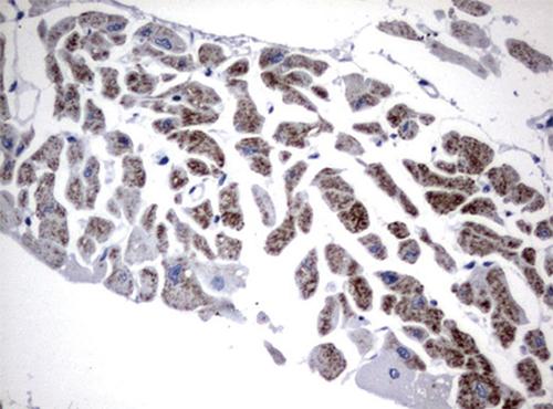 パラフィン包埋したヒト成体心臓組織をanti-FGF21 マウスモノクローナ ル抗体を使って免疫組織化学染色(UM500059)