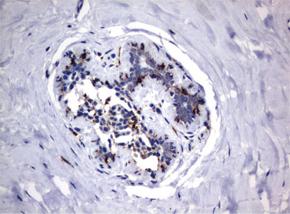 パラフィン包埋したヒト乳房組織をanti-FCGR1A マウスモノクローナル抗体を使って免疫組織化学染色(UM500062)