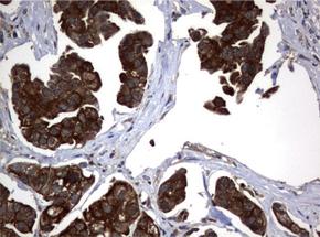 パラフィン包埋したヒト膀胱組織の細胞腫をanti-VBP1 マウスモノクローナル抗体を使って免疫組織化学染色(UM500063)