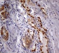 パラフィン包埋したヒト前立腺組織の細胞腫をanti-ERG マウスモノクローナル抗体を使って免疫組織化学染色 Clone UMAB78