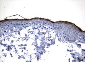 パラフィン包埋したヒト皮膚組織をanti-KLK 8マウスモノクローナル抗体を使って免疫組織化学染色(UM500069)
