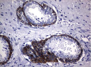 EGFR / NM_201283 UltraMAB(R) 抗体