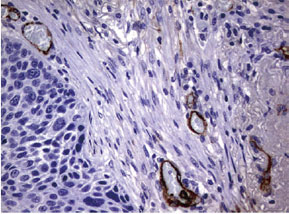 パラフィン包埋したヒト肺組織の細胞腫をanti-ADIPOQ マウスモノクローナル抗体を用いて免疫組織化学染色(UM500072)