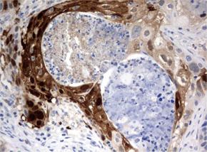 パラフィン包埋したヒト肺組織の細胞腫をanti-IDO1 マウスモノクローナル抗体を使って免疫組織化学染色(UM500091)