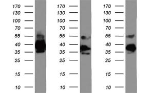 anti-EPCAM モノクローナル抗体を使ってウェスタンブロット解析