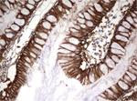 ヒト結腸組織をanti-EPCAM マウスモノクローナル抗体を使って免疫組織化学染色