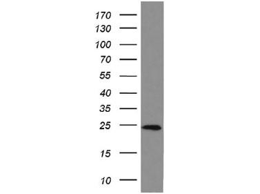 HEK293 細胞可溶化液をanti-BIDモノクローナル抗体でWB