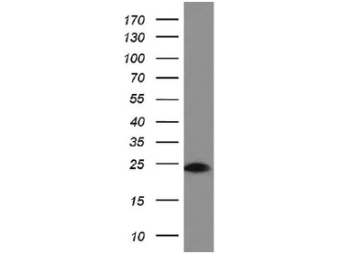 COLO205細胞可溶化液をanti-BIDモノクローナル抗体でWB