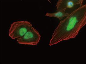 HeLa 細胞をJUN マウスモノクローナル抗体を用いて免疫蛍光染色 (UM800005、緑色)。アクチン線維はTRITC- ファロイジン(赤色)ラベルし、核はDAPI 染色(青色)し、3色を重ね合わせた。