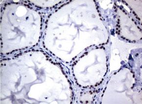パラフィン包埋したヒト甲状腺組織をanti-MGMT マウスモノクローナル抗体を使って免疫組織化学染色 Clone UMAB52