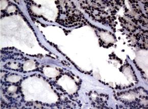 パラフィン包埋したヒト甲状腺組織の細胞腫をanti-MGMT マウスモノク ローナル抗体を使って免疫組織化学染色 Clone UMAB52