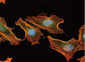 HeLa 細胞をMGMT マウスモノクローナル抗体を用いて免疫蛍光染色(緑 色)。アクチン線維はTRITC- ファロイジン(赤色)ラベルし、核はDAPI 染色(青 色)し、3色を重ね合わせた。Clone UMAB52
